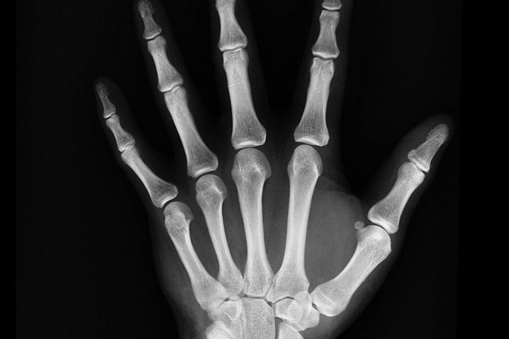 Consejos para prevenir la artrosis